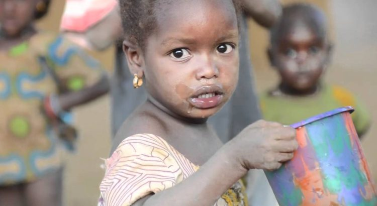 جمیله خرازی: مشکل تغذیه در کودکان اوگاندا
